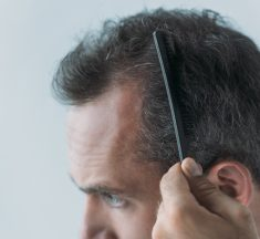 Reasons For Male Pattern Baldness – Check the reasons